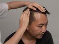Przeszczep włosów – zalecenia pozabiegowe
