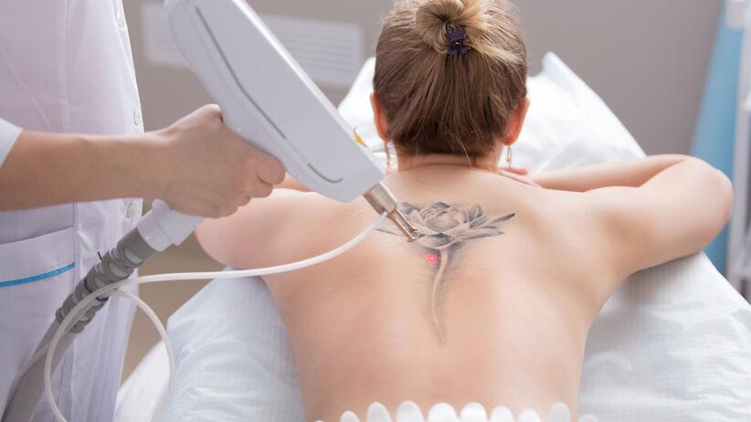 Tatuaż Jak Go Usunąć Laserowe Usuwanie Tatuażu Zdrowie