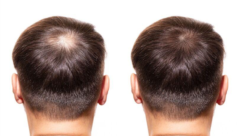 Wypadanie włosów - jaka metoda leczenia?