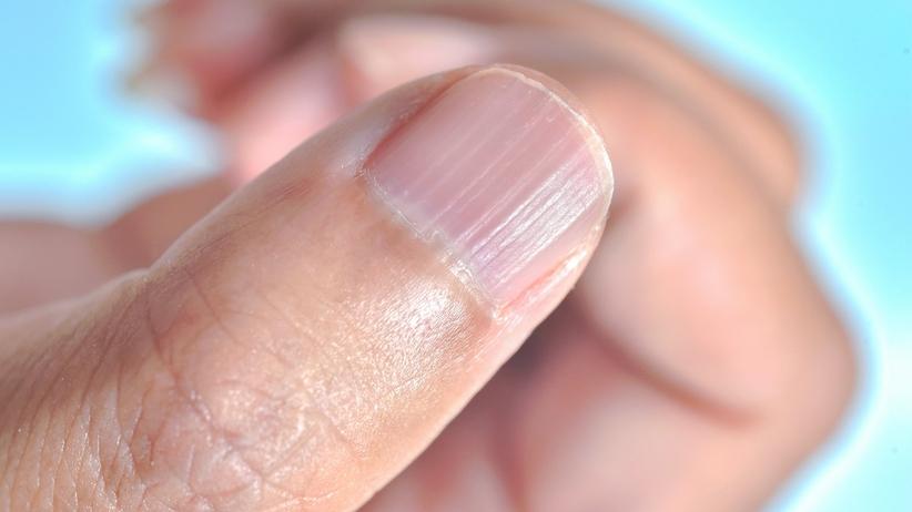 Bruzdy na paznokciu - o czym świadczą?
