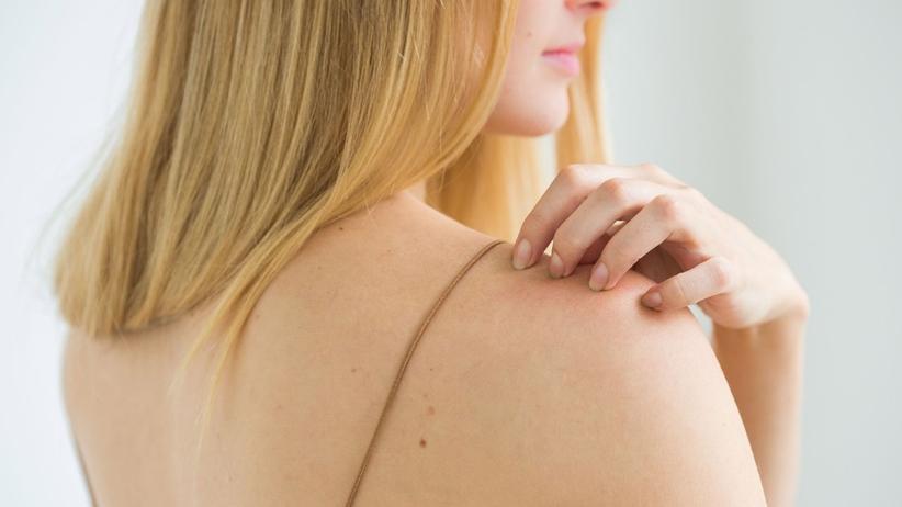 Masz suchą skórę? Sprawdź, czy nie jest to objaw poważnej choroby