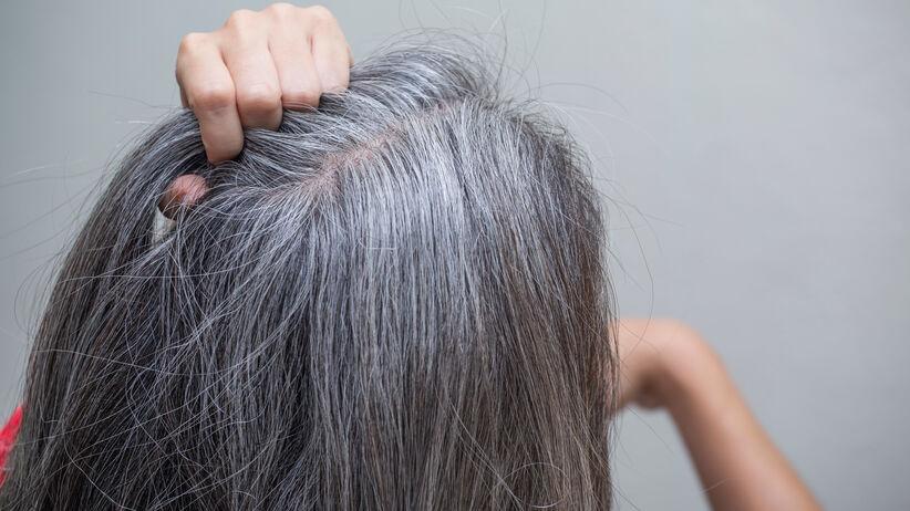Siwe włosy w młodym wieku: czym to może być spowodowane?