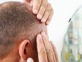 Przeszczep włosów też może spowodować powikłania