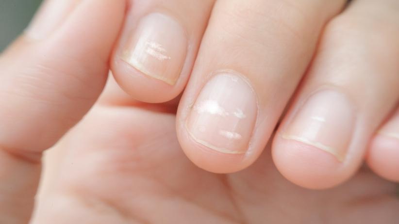 Zmiany na paznokciu - białe plamki