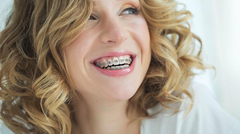 Aparaty ortodontyczne naprawią wadę zgryzu i krzywe zęby. Który aparat stały wybrać?