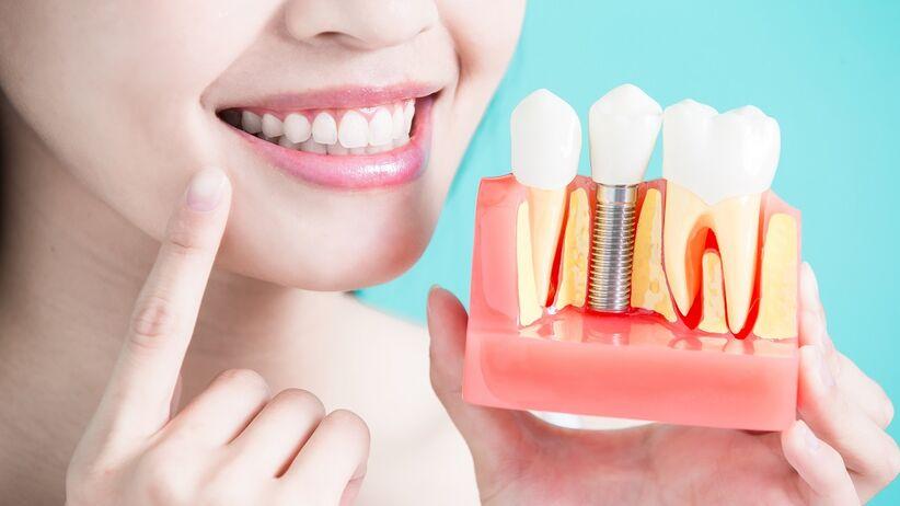 Implanty zębowe - kwalifikacja do zabiegu