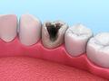 Próchnica zębów to nie żarty! Niszczy zęby i prowadzi do wielu chorób