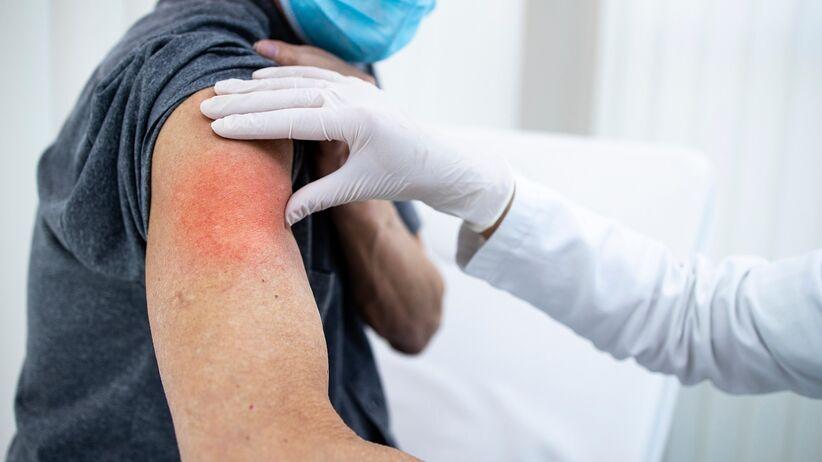 Odczyn poszczepienny po szczepieniu przeciwko COVID-19