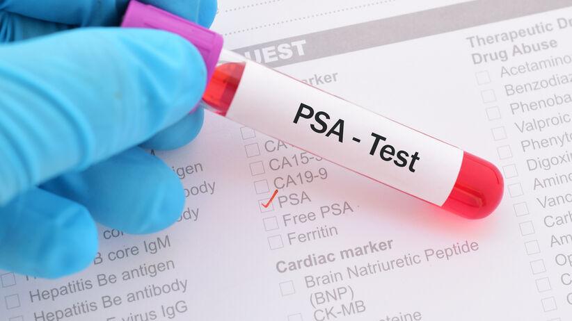 Badanie (test) PSA
