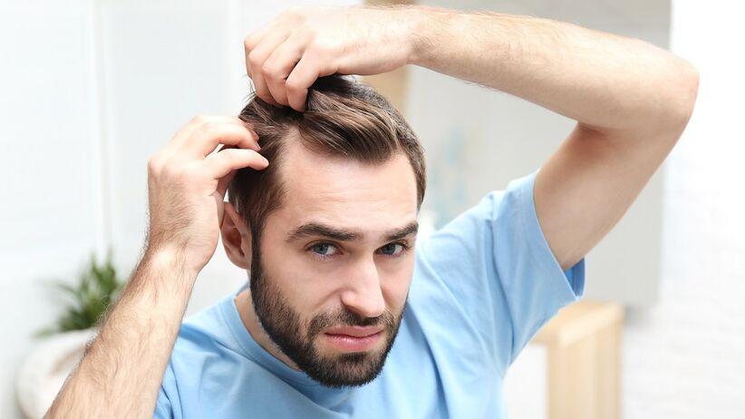 Cienkie włosy a wypadanie włosów u mężczyzn: objaw łysienia