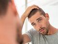 Wypadanie włosów u mężczyzn – jaka jest tego przyczyna?