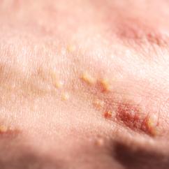 Objaw skórny alergii na słońce