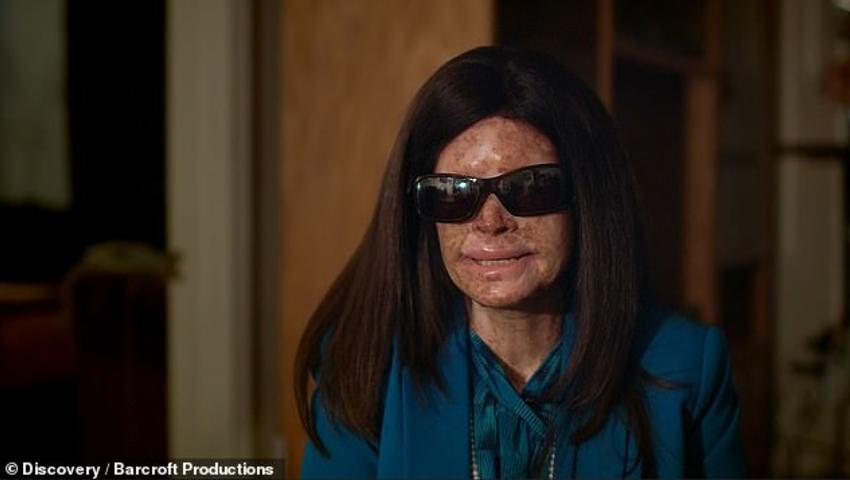 Kobieta choruje na skórę pergaminową