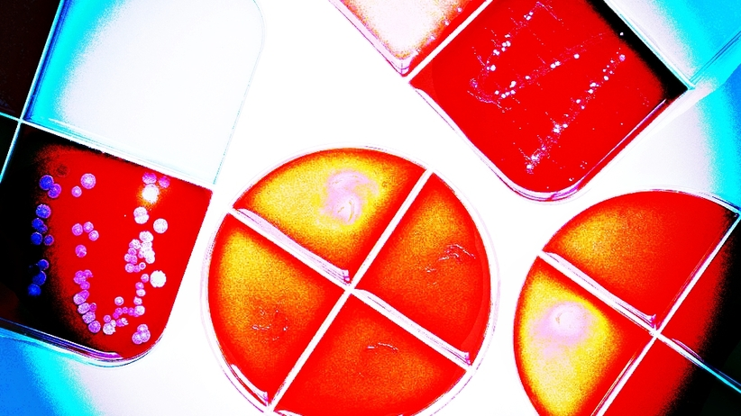 Superbakteria New Delhi nadal aktywna. Zakaz odwiedzin w białostockim szpitalu