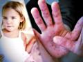 Choroba bostońska atakuje: coraz więcej zarażonych maluchów