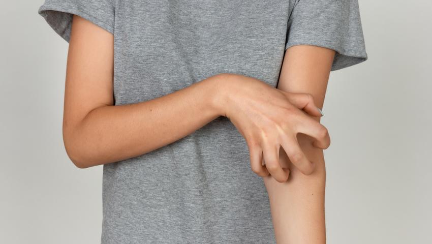 Świerzb to zaraźliwa choroba pasożytnicza skóry