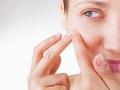 Czyrak może pojawić się w wielu miejscach na skórze, szczególnie groźny jest na twarzy