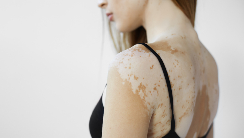 Kobieta chora na bielactwo