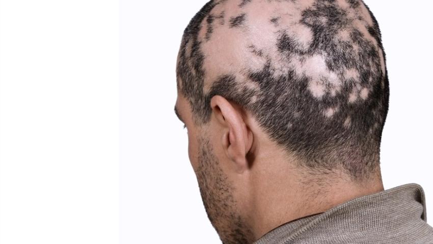 Łysienie plackowate to choroba przewlekła dotycząca mieszków włosowych