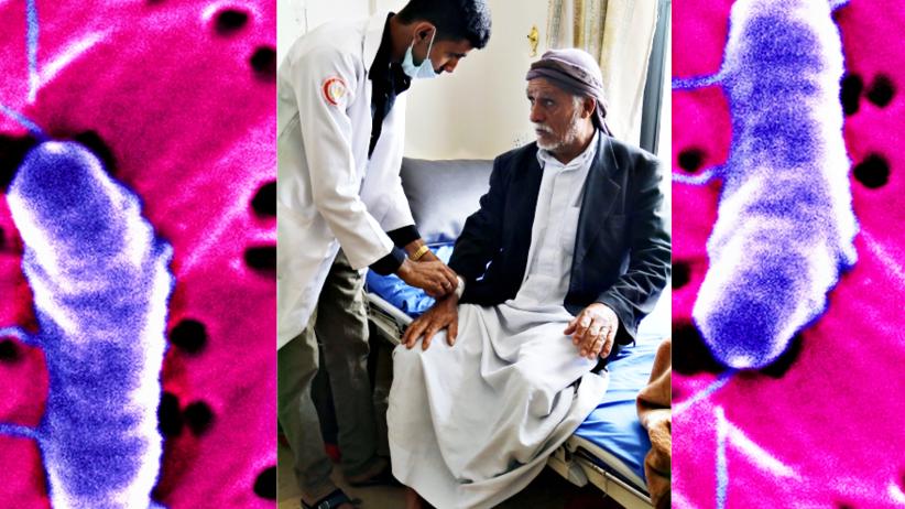 Jemen: Ponad 900 ofiar śmiertelnych epidemii cholery