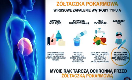 Śląsk: Służby sanitarne ostrzegają przed początkiem epidemii żółtaczki