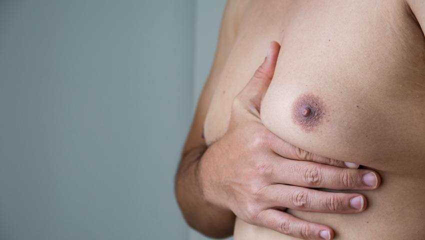 Ginekomastia to męski problem polegający na przeroście tkanki piersiowej
