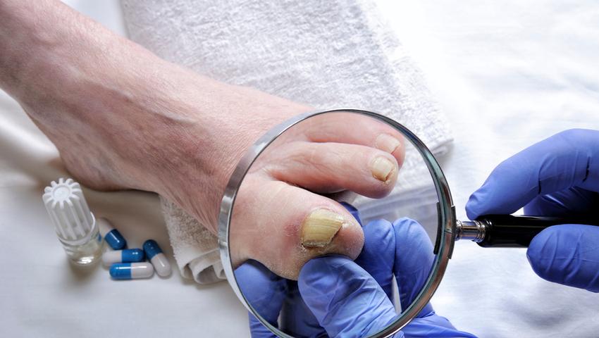 Nieleczona grzybica paznokci może prowadzić do ich utraty