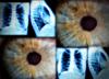Irydolog zamiast onkologa? Rezultat: guz piersi wielkości pięści