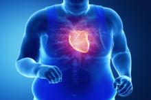 Zawał serca, atak serca, choroby serca, statystyki zawałów
