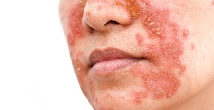 Łojotokowe zapalenie skóry twarzy