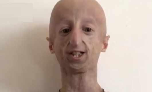 Ma 22 lata, a wygląda jak 100-latek! Poznaj najstarszego człowieka z progerią