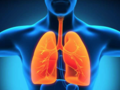 Rak płuca: najbardziej śmiercionośny z nowotworów. Jak się go leczy w Polsce?