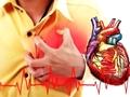 NFZ wprowadza limity na leczenie stanów przedzawałowych. Kardiolodzy protestują