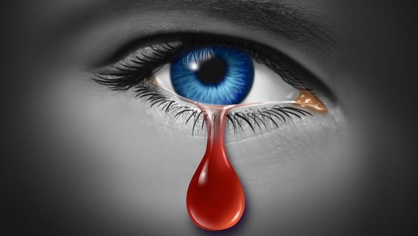 Krwawe łzy - hemolakria