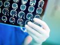 Guz mózgu występuje częściej u dzieci i osób dojrzałych