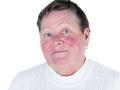 Trądzik różowaty objawia się rumieniem na środkowej części twarzy