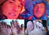 W najgorszym stanie są stopy Elizabeth Revol. Może stracić palce (FILM)