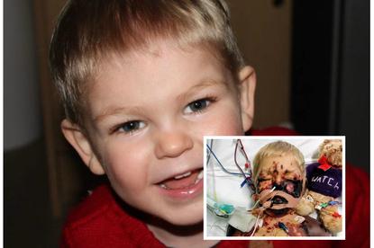 Alfie - posocznica meningokokowa