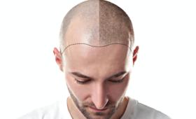 łysina, łysy mężczyzna, wypadanie włosów, lek na osteoporozę, jak zapobiegać wypadaniu włosów