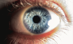 oko, oczy, obrzęk plamki, Ozurdex, GIF, wycofany lek, wzrok, choroby oczu, źrenica