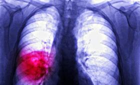 Szczepionka na raka? Dzięki immunoterapii jesteśmy coraz bliżej