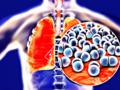 Seniorzy z Pomorza dostaną darmowe szczepionki przeciwko pneumokokom