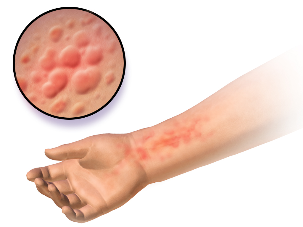 Alergiczna pokrzywka na skórze