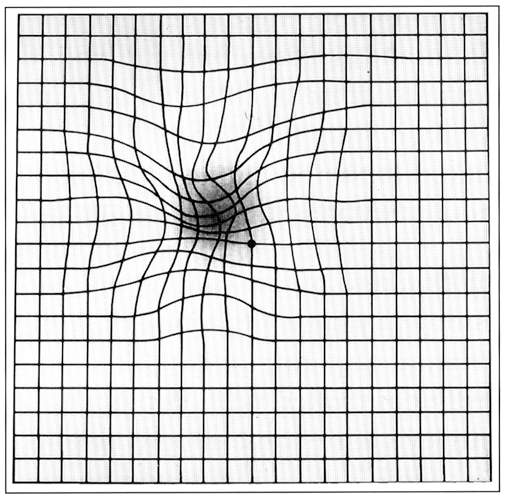 Amsler_grid_-_age-related_macular_degeneration_EC04