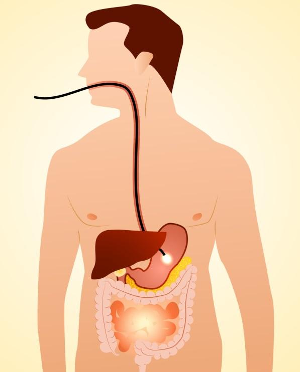 Gastroskopia (Fot. Fotolia.com)