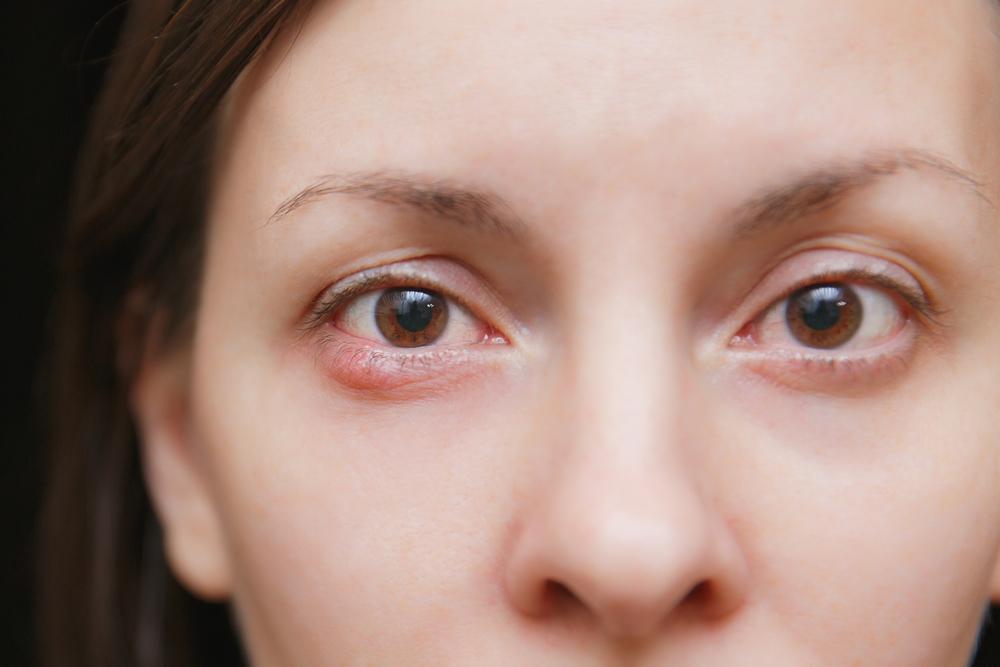 jęczmień pod okiem u kobiety