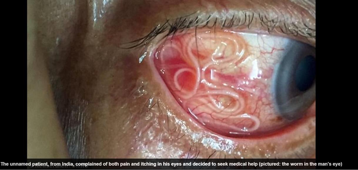 pasozyt w oku