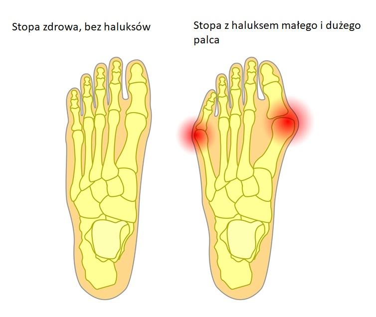 porównanie stopy zdrowej i z haluksem