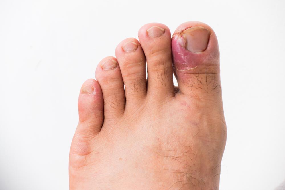 wrośnięty w skórę paznokieć