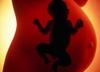 Aborcja - temat zastępczy na kłopoty w służbie zdrowia?